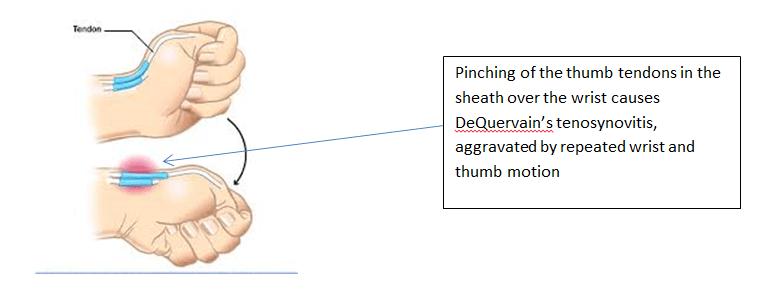 dequervain s tenosynovitis hand surgery associates