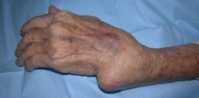 foot deformities in patients with rheumatoid arthritis the relationship functions