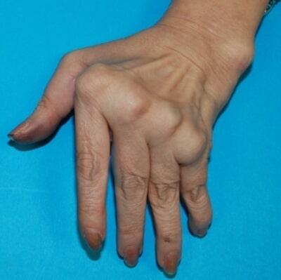 deformities of the hand hand surgery associates